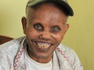 smiling-gentleman-after-korah-elders-leprosy-home-opens.jpg